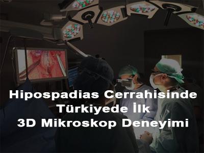 Hipospadias Cerrahisinde Türkiyede İlk 3D Mikroskop Deneyimi